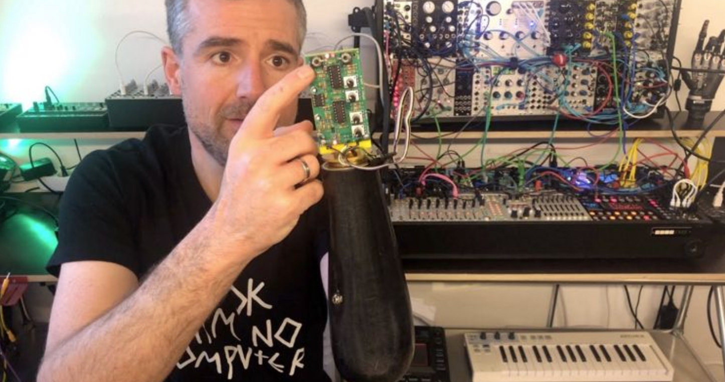 Electronic musician adapts prosthetic arm to control modular synthesiser - DJ Mag